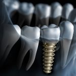 Europe Dental Implants Market Research Report, Market Share, Size, Trends, Forecast and Analysis of Key players 2025