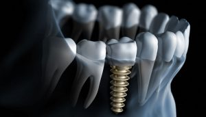 Europe Dental Implants Market Report