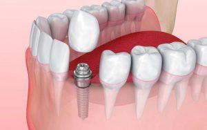 GCC Dental Implants Market Report